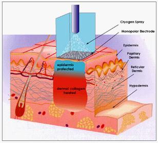 サーマクールは冷却ガスでやけど予防ができる